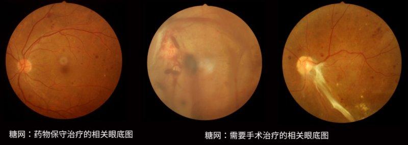 眼科医生整理|一文读懂三类常见的眼底疾病(附推荐用药)