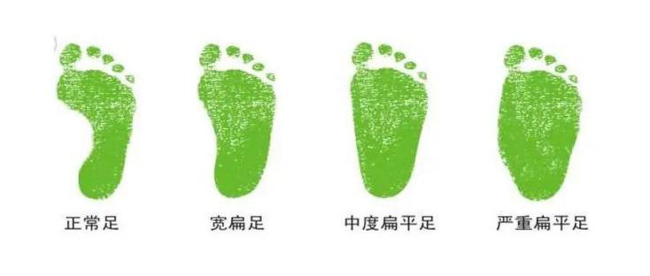 判断孩子有严重扁平足,可去专业机构检查足部配矫正鞋